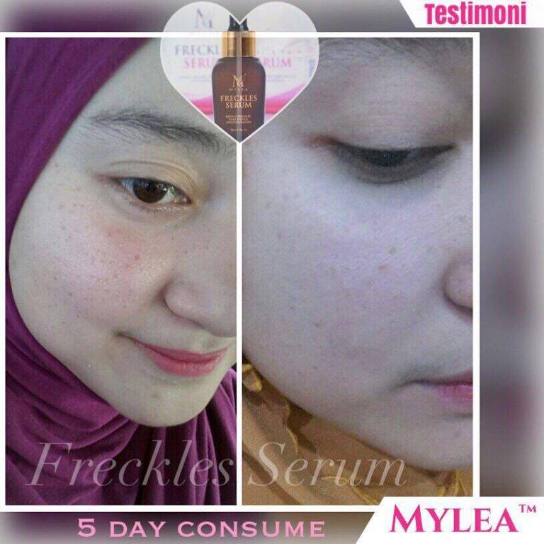 mylea testimoni 15