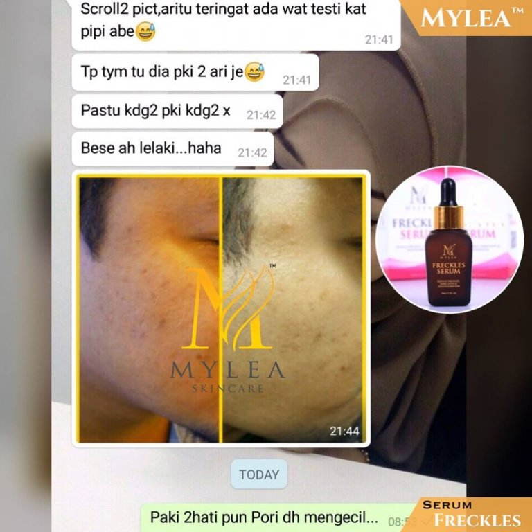 mylea testimoni 3