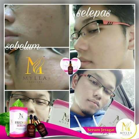 Mylea_Freckle_Serum_Testimoni_18