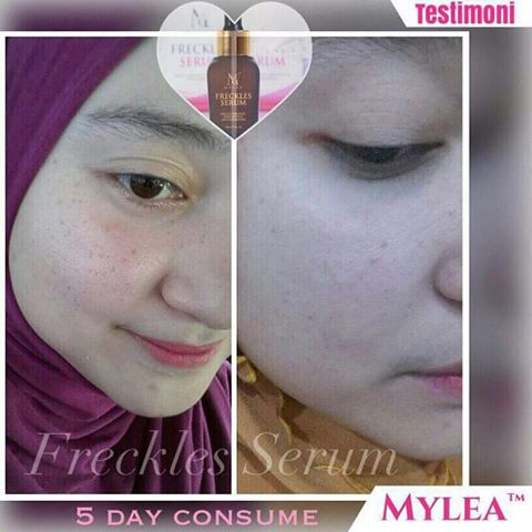 Mylea_Freckle_Serum_Testimoni_28