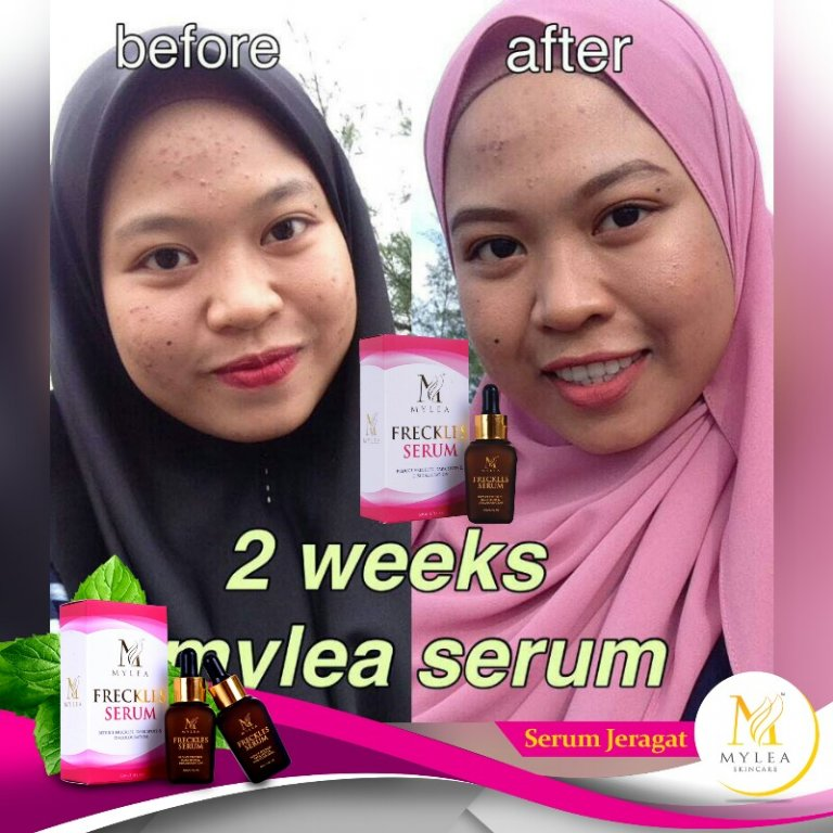 Mylea_Freckle_Serum_Testimoni_11