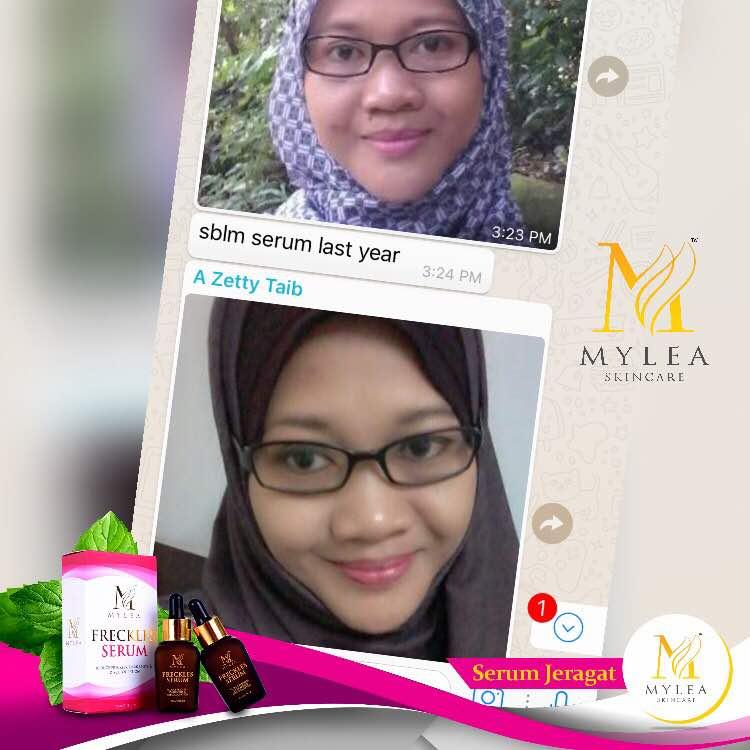 Mylea_Freckle_Serum_Testimoni_56