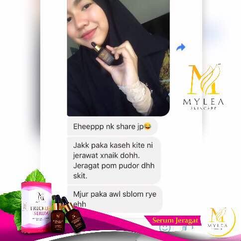 Mylea_Freckle_Serum_Testimoni_79