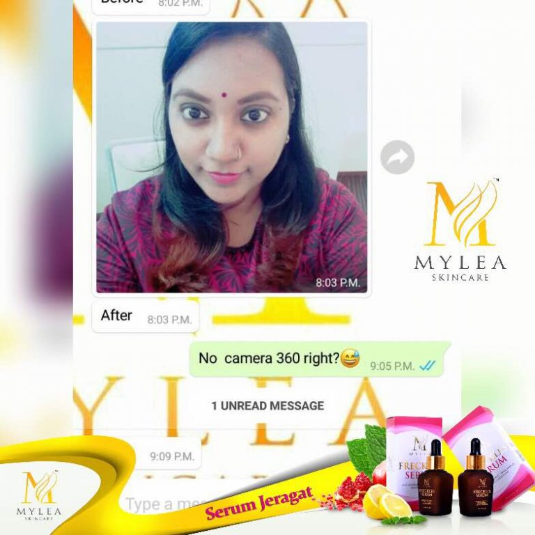 Mylea_Freckle_Serum_Testimoni_83